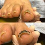 たった1回で、長年悩んだ巻き爪から解放された糸島市から来院された50代女性の巻き爪矯正
