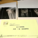 50代の電気工事士さんが仕事中に転んで膝を痛め労災を使い施術しました