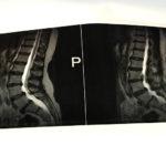 畑仕事で椎間板ヘルニアを発症した70代女性を病院へ紹介しました
